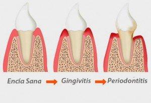 Problèmes parodontaux, pyorrhée.