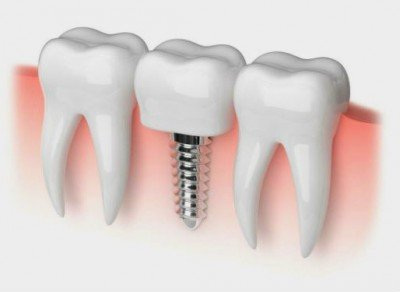 Implante dental necesidades