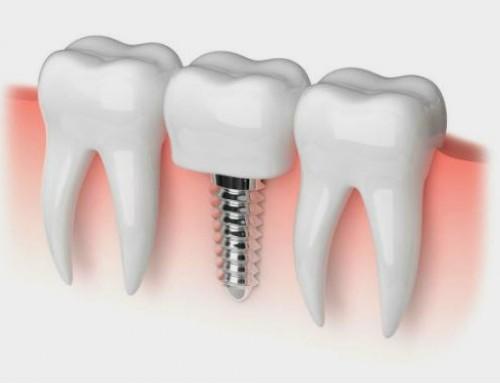 ¿Necesito un implante por cada pieza dental a reponer?