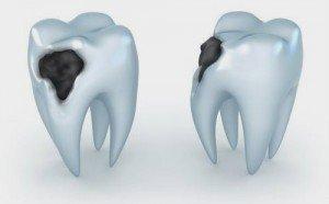 Caries dental artículo