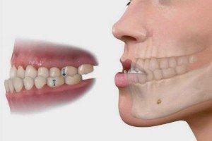 prognatismo mandibular artículo
