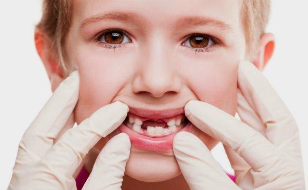 Prevención contra los traumatismos dentales