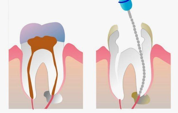 Proceso de endodoncia