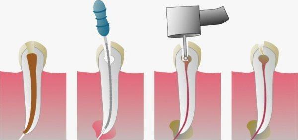 Que es una endodoncia y cómo se realiza