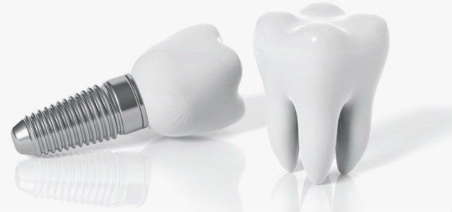 Implantes dentales como solución