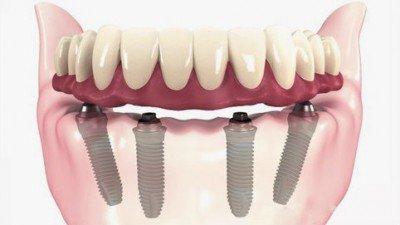 Solucion a los implantes dentales