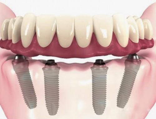 ¿Hay una solución a los implantes dentales?