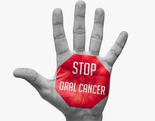 Prevención cáncer oral