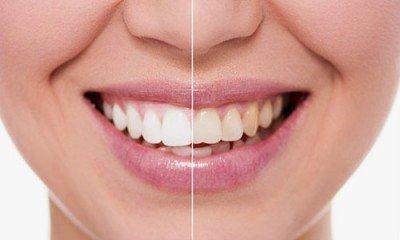 Carillas o blanqueamiento dental