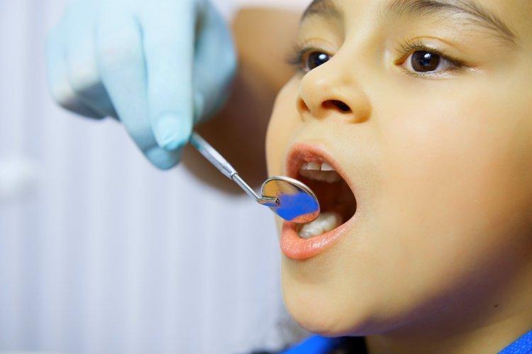 Caries dental infantil