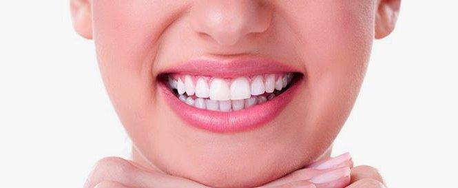 Estética dental carillas