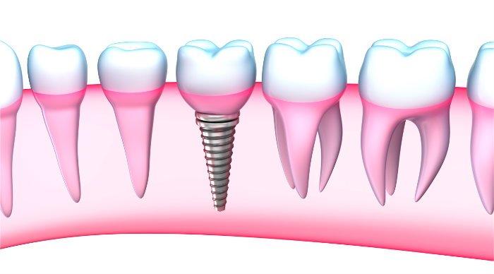 Implantes dentales en 1 día