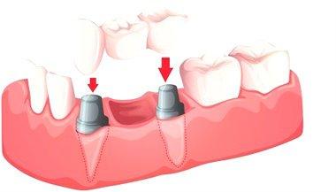 implante dental paso a paso