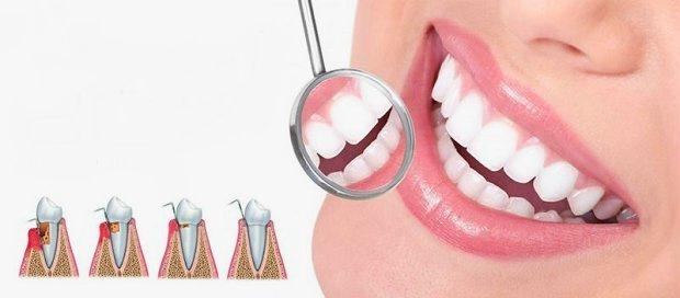 Periodoncia estética dental