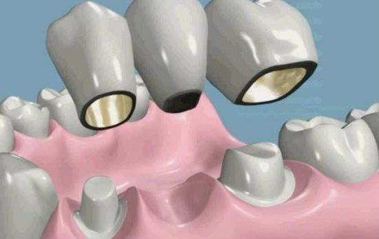 Prótesis dentales coronas