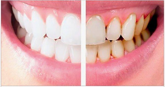 Placa dental malaga