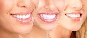 Limado de dientes
