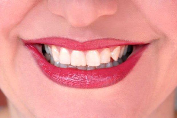Como se liman los dientes