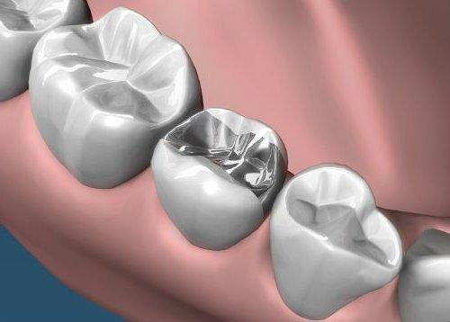 Empastes dentales artículo