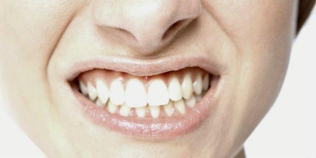 Empastes dentales y bruxismo