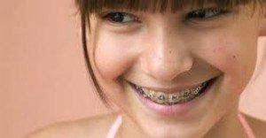 ortodoncia en cada etapa artículo