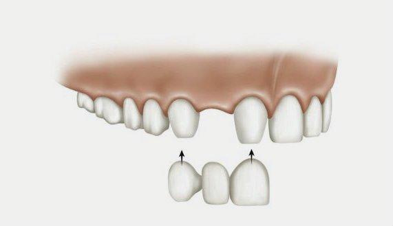 Puentes dentales que son