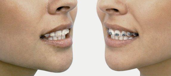 Tipos de ortodoncia artículo