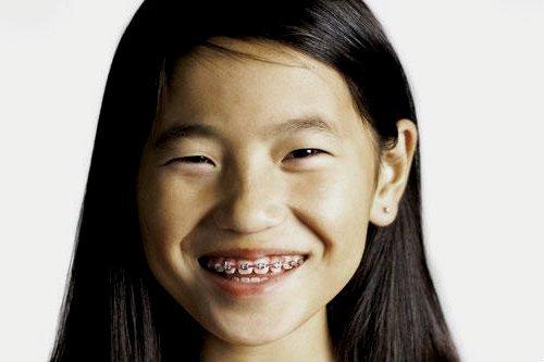 Tipos de ortodoncia en niños
