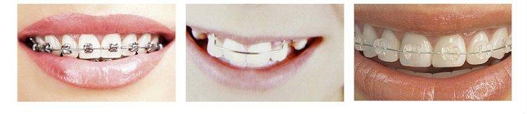 Tipos de ortodoncia metálica