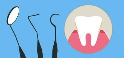 cuanto cuesta una limpieza dental