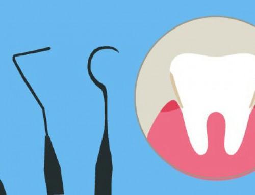 Cuánto cuesta una limpieza dental y qué tipos existen