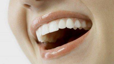Estética dental en clinica dental tafur
