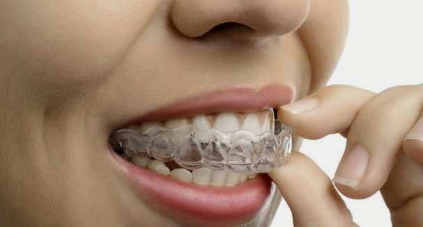 Ferula dental artículo