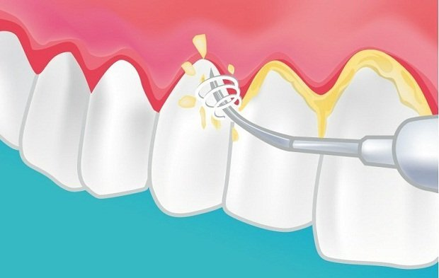 Tipos de limpiezas dentales