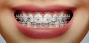 Cosmetic brackets Tafur dental clinic Malaga