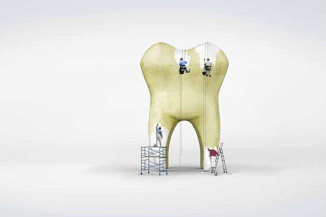 Como eliminar las manchas negras dentales