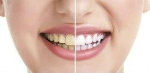 Manchas negras en los dientes