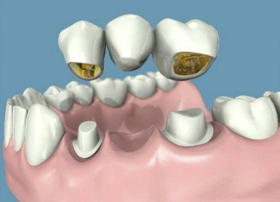 Puentes dentales artículo