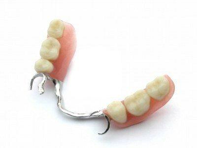Puentes dentales removibles