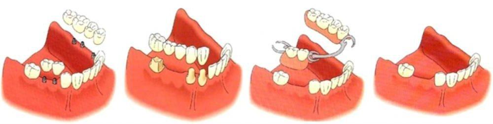 Tipos de puentes dentales que existen