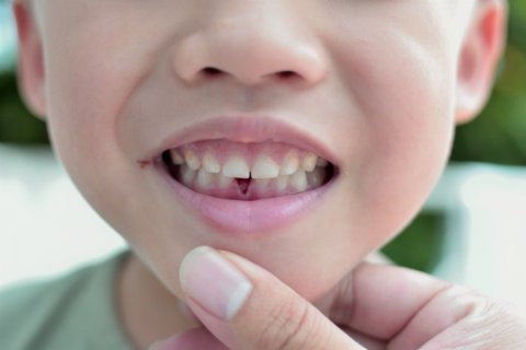 traumatismo dental en niños como actuar