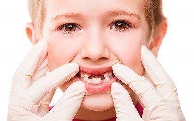 traumatismo dental niños