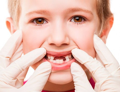 Traumatismo dental en niños