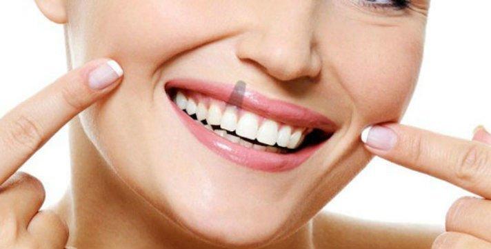 Cuidados implantes dentales cepillado