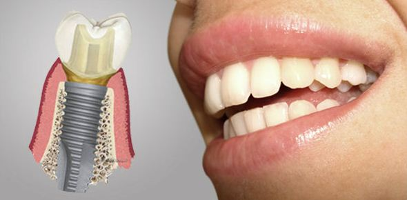 Cuidados de implantes dentales y tabaco