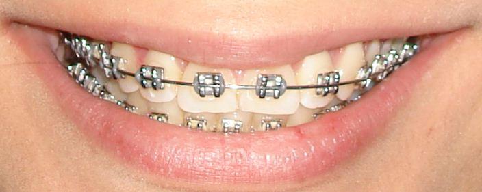 Tratamiento en ortodoncia