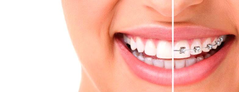 Clases de ortodoncia