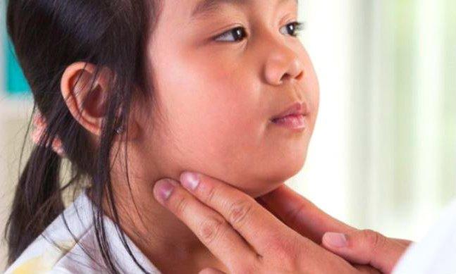 Glándula Parótida inflamada síntomas