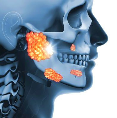 Glándula Parótida inflamada tratamiento