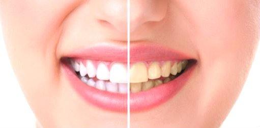 limpieza bucal con anestesia precio